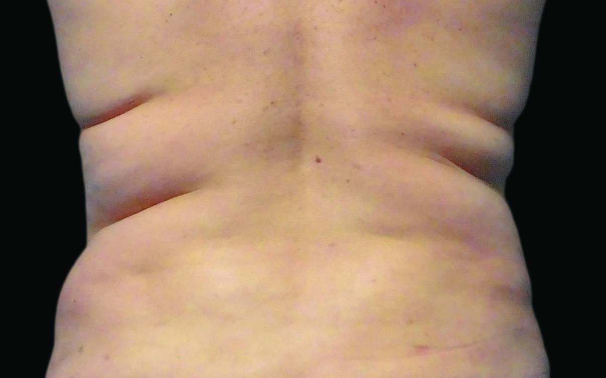 109-Female-Abdomen-DrBowes-Medium.jpg_0006_Before
