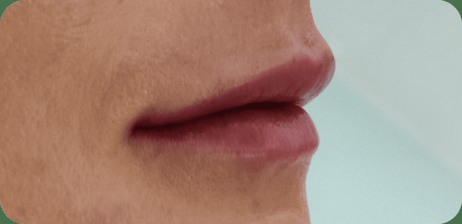 julia lips after