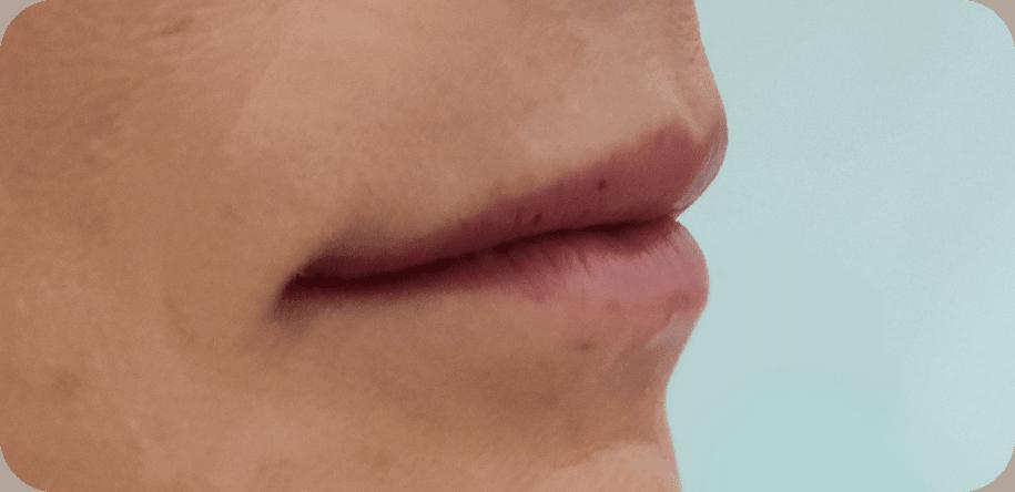 julia lips before